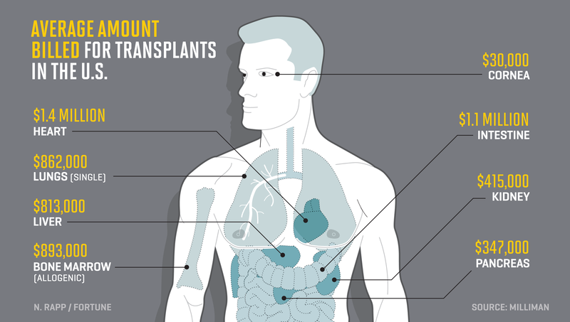 transplantation costs